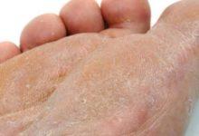 Photo of تعرف على الفطريات الجلدية وأهم أنواع الفطريات الجلدية