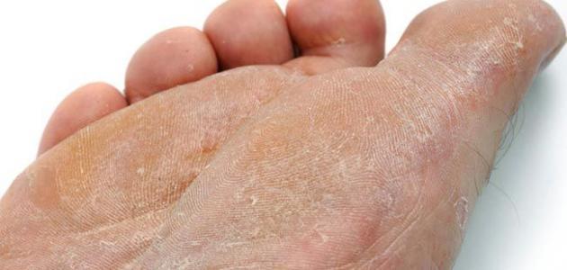 الفطريات الجلدية