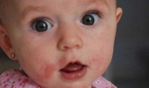 حساسية الألبان للأطفال 4