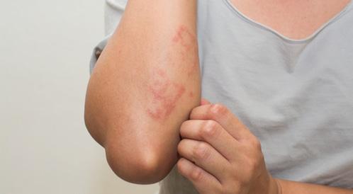 حساسية الجلد