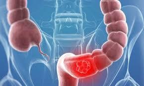 سرطان القولون 3