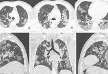 Photo of الأشعة العادية و المقطعية علي الصدر ما لها و ما عليها