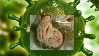 Photo of أعراض فيروس كورونا عند الأطفال COVID-19