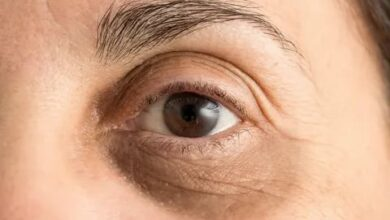 Photo of أسباب الهالات السوداء حول العين