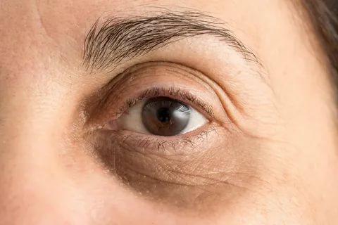 أسباب الهالات السوداء حول العين