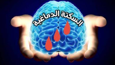 Photo of أعراض جلطة المخ السكتة الدماغية