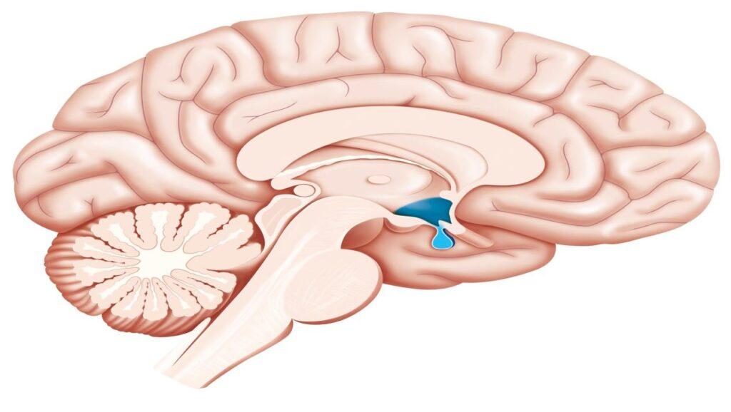 جلطة المخ