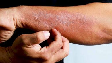 Photo of علاج فطريات الجلد وما هو أنواعه