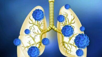 Photo of تأثير فيروس كورونا على الجهاز التنفسي فيروس كورونا