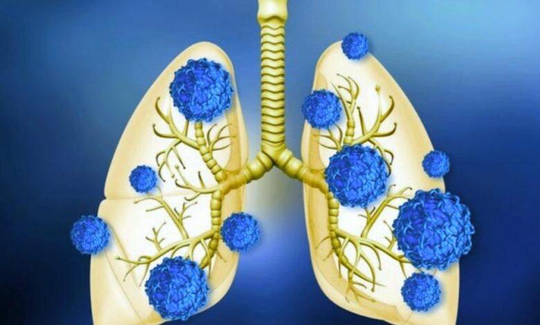 تأثير فيروس كورونا على الجهاز التنفسي