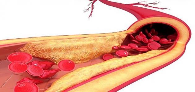 ارتفاع نسبة الدهون في الدم