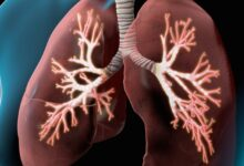 Photo of أنواع الالتهاب الرئوي و كيفية علاجه