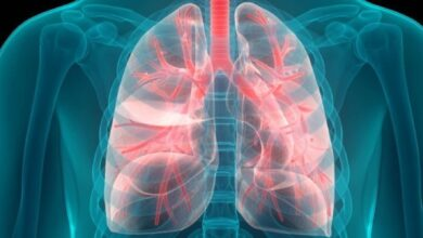 Photo of مرض التليف الرئوي، أسبابه وأعراضه