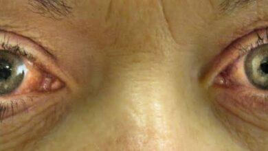 Photo of كل ما تود معرفته عن مرض المياه الزرقاء بالعين