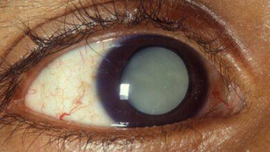 Photo of المياه البيضاء في العين..هل تسبب العمي؟