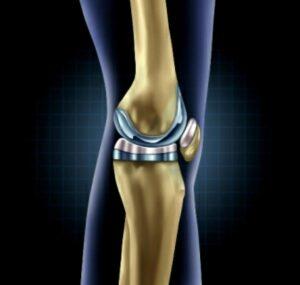 تغيير مفصل الركبة