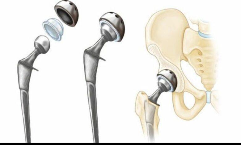 استبدال مفصل الفخذ