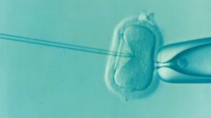 الحمل بعد الحقن المجهري