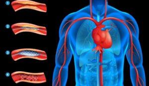 الصيام و دعامات القلب