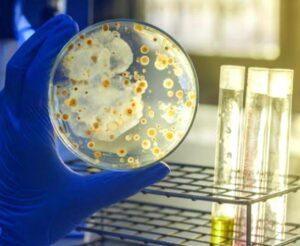 تحاليل التهابات الجسم والعدوى