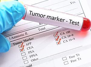 Photo of كل ما تريد معرفته عن تحاليل دلالات الأورام