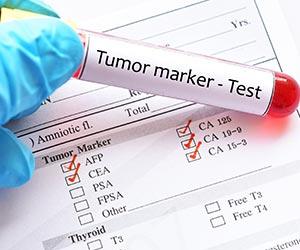 تحاليل دلالات الأورام