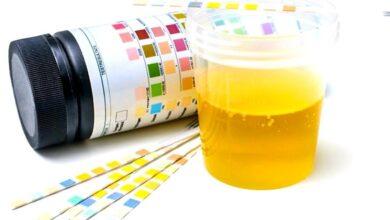 Photo of كل ما تريد معرفته عن تحليل البول