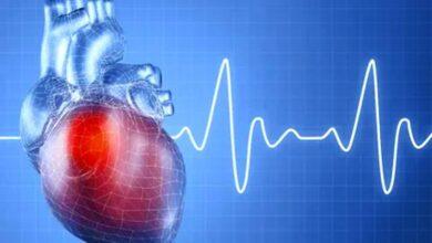 Photo of كل ما تريد معرفته عن تحاليل إنزيمات القلب