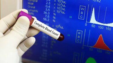 Photo of تحليل صورة الدم الكاملة وما هي مكونات الدم ؟